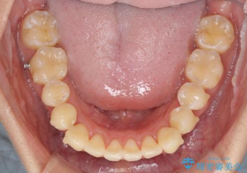 八重歯の再矯正 インビザラインでストレスなく矯正治療の治療中