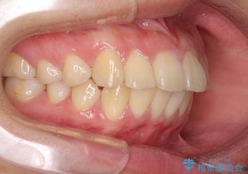 部分矯正で出っ歯になった 出っ歯改善の抜歯矯正の治療前