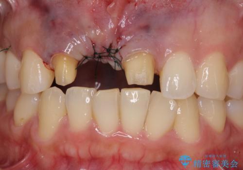 治療途中で放置した前歯 オールセラミックブリッジの治療中