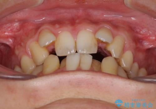 前歯のガタガタをきれいにしたい ワイヤーによる抜歯矯正で整った歯並びへの治療前