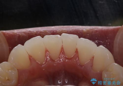 歯科衛生士による専門的なクリーニング PMTCの治療後