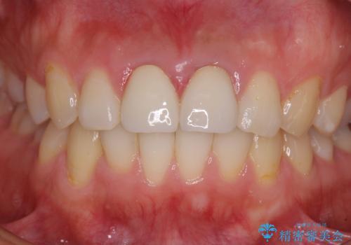 変色した前歯のクラウン オールセラミッククラウンにより審美歯科治療の治療後
