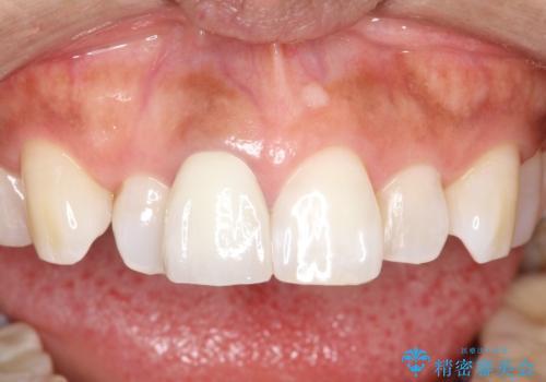 前歯の色が気になる、オールセラミッククラウンによる治療の治療後