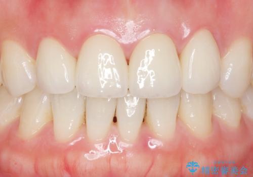 美容外科による不自然なかぶせもので、前歯がコンプレックスに。自然なセラミックにやりかえ 30代女性の治療後