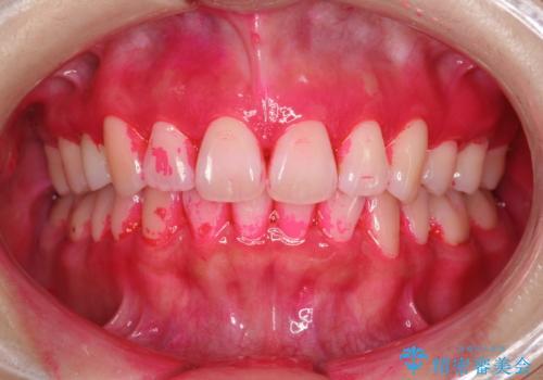 染め出しをしての歯磨き指導とPMTCの治療前