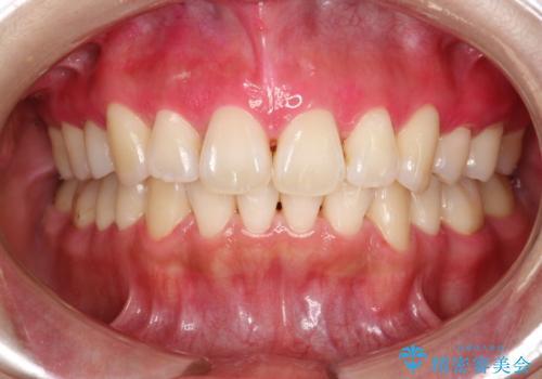 染め出しをしての歯磨き指導とPMTCの治療後