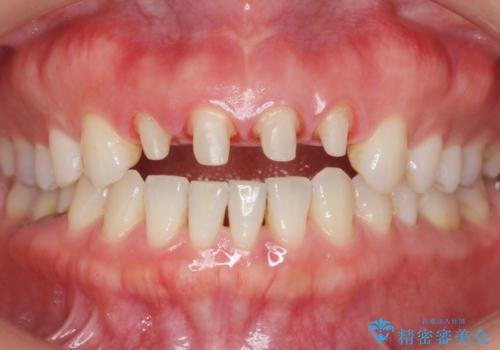 美容外科による不自然なかぶせもので、前歯がコンプレックスに。自然なセラミックにやりかえ 30代女性の治療中