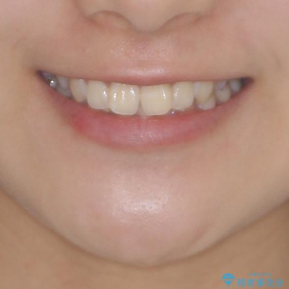 上下前歯の叢生をインビザラインできれいにの治療前(顔貌)