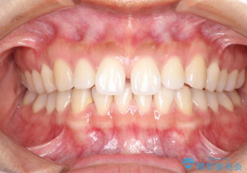 すきっ歯のインビザラインによる目立たない矯正の治療前