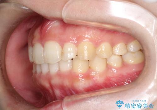 インビザラインでの前歯のガタガタの矯正の治療後