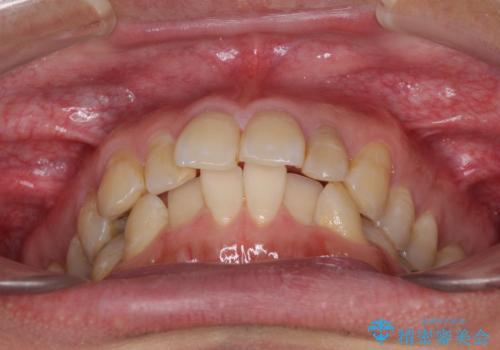 前歯のデコボコと下顎の八重歯 インビザラインによる矯正治療の治療前