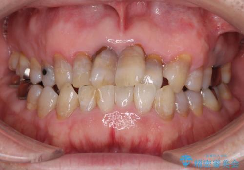 上顎の狭窄歯列 インビザラインによる拡大矯正の治療前
