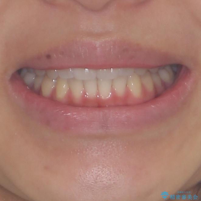 インプラントによる補綴治療とインビザライン矯正の治療後(顔貌)