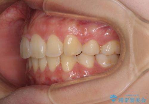 部分矯正で出っ歯になった 出っ歯改善の抜歯矯正の治療後