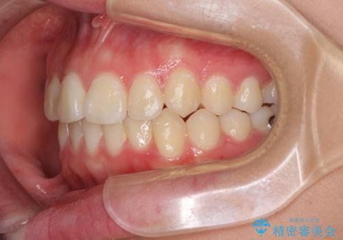前歯のデコボコを改善 インビザライン矯正の治療中