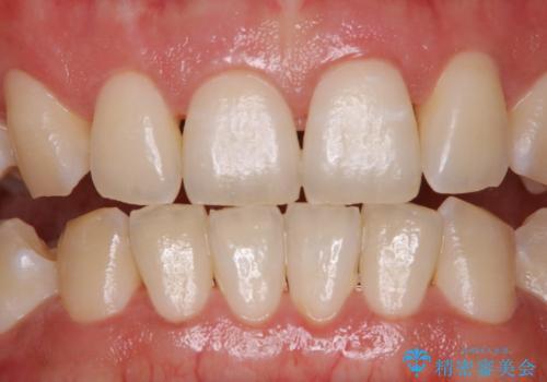ホワイトニングせずにPMTCで明るい口元にの治療前