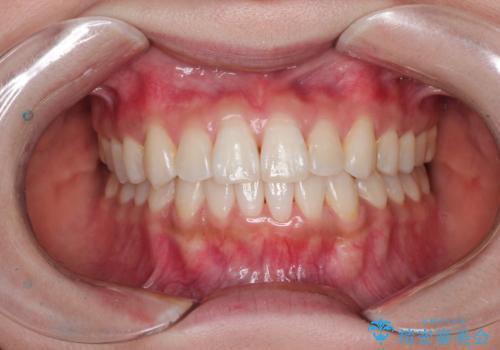 前歯のがたつきと反対咬合 インビザラインによる矯正治療の治療後