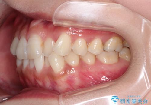 前歯のがたつきと反対咬合 インビザラインによる矯正治療の治療前