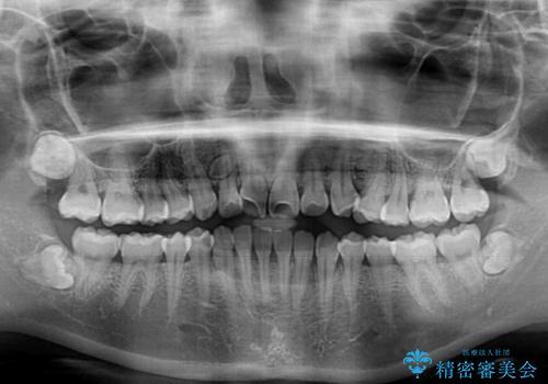 軽微な歯列不正をワイヤー矯正で整えるの治療前