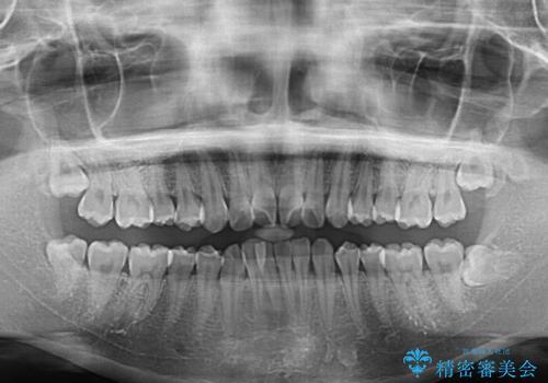 上下前歯の叢生をインビザラインできれいにの治療前