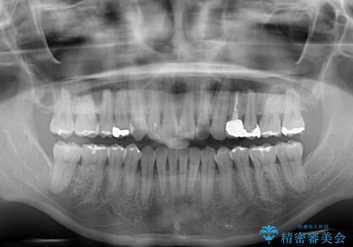 八重歯の再矯正 インビザラインでストレスなく矯正治療の治療後