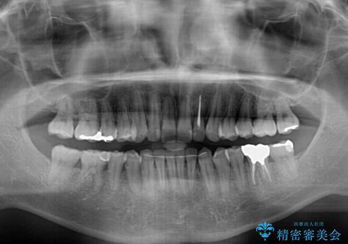 前歯のデコボコと下顎の八重歯 インビザラインによる矯正治療の治療後