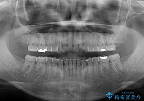 受け口傾向の前歯 すきっ歯の改善の治療後