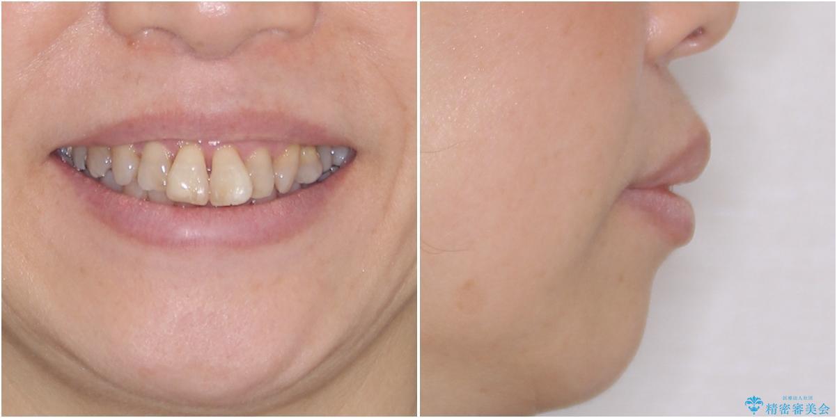 出っ歯を改善した後に真っ白な歯に 矯正歯科治療と審美歯科治療の治療前(顔貌)
