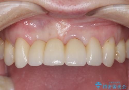 前歯が折れた 前歯部審美セラミックブリッジ治療の治療後