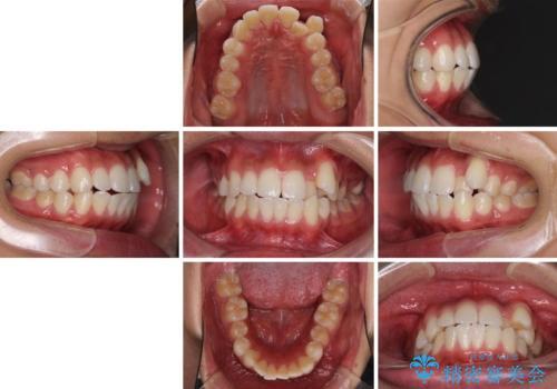 八重歯と奥歯のクロスバイト 上顎骨を拡大してインビザラインで矯正の治療前