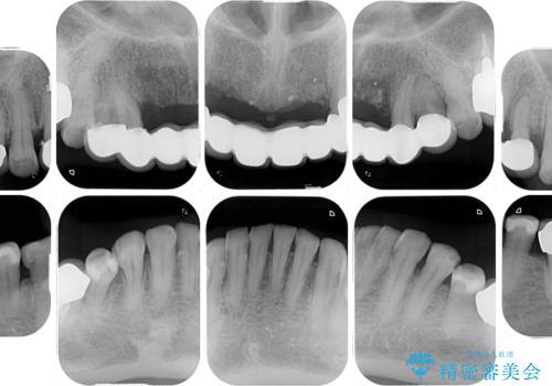 出血が止まらない インプラント補綴を用いた歯周病治療の治療前
