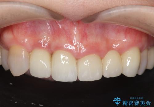 [歯ぐきの腫れを改善]  不適合なセラミッククラウンの症例 治療後