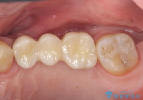 咬合平面を揃え、早期接触・干渉を防ぐ補綴治療の治療後