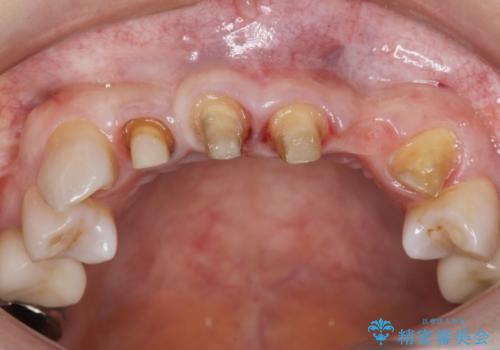 [歯ぐきの腫れを改善]  不適合なセラミッククラウンの治療中
