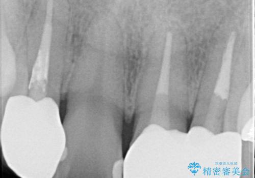 歯並びを含めて前歯をきれいにしたい インビザラインとセラミック治療の治療後