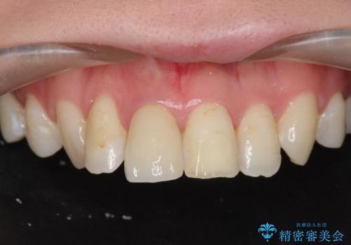 [前歯の変色] 前歯の見た目を改善したいの治療後