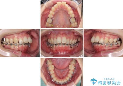 費用を抑えた抜歯矯正 口元の突出感の改善の治療中