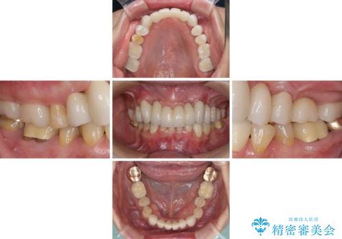 出血が止まらない インプラント補綴を用いた歯周病治療の治療後