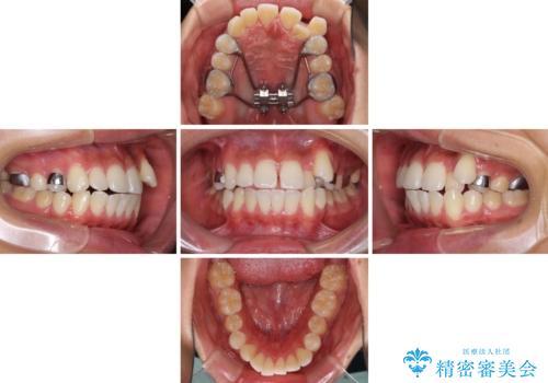 八重歯と奥歯のクロスバイト 上顎骨を拡大してインビザラインで矯正の治療中