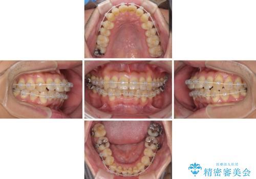 前歯のデコボコ ワイヤー装置での短期間治療の治療中