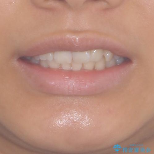インビザラインによる矯正治療 カリエールディスタライザーを用いた奥歯の咬み合わせ改善の治療前(顔貌)