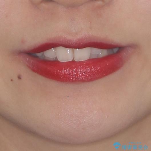 狭い上顎骨を拡大 急速拡大装置を併用したインビザライン矯正の治療前(顔貌)