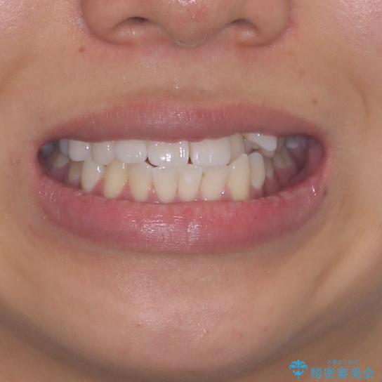 八重歯と奥歯のクロスバイト 上顎骨を拡大してインビザラインで矯正の治療前(顔貌)