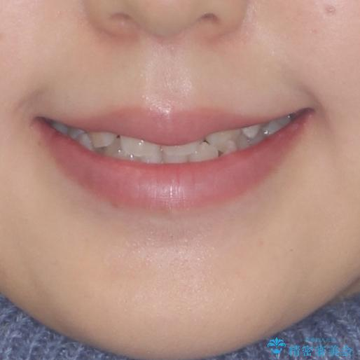 前後に重なった前歯 ワイヤー装置と急速拡大装置を併用したインビザライン矯正の治療前(顔貌)