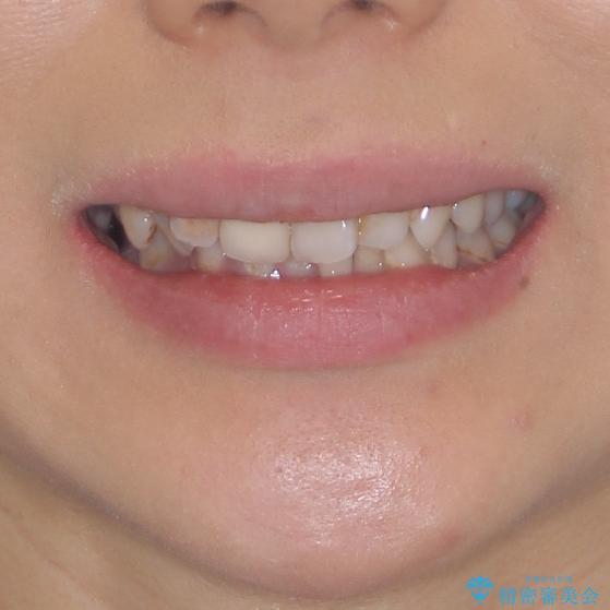 歯並びと目立つ金属を治したい 総合歯科治療の治療前(顔貌)