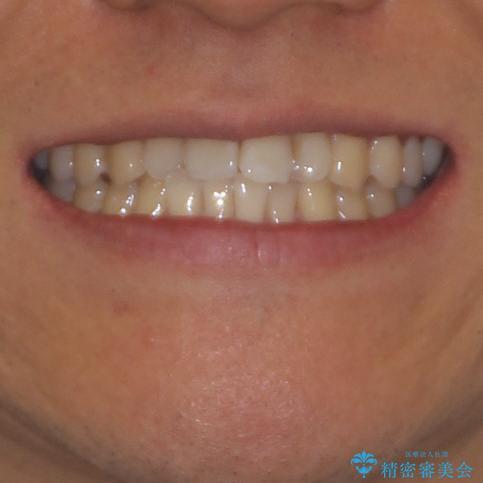 気になる前歯のデコボコをインビザラインで解消の治療前(顔貌)