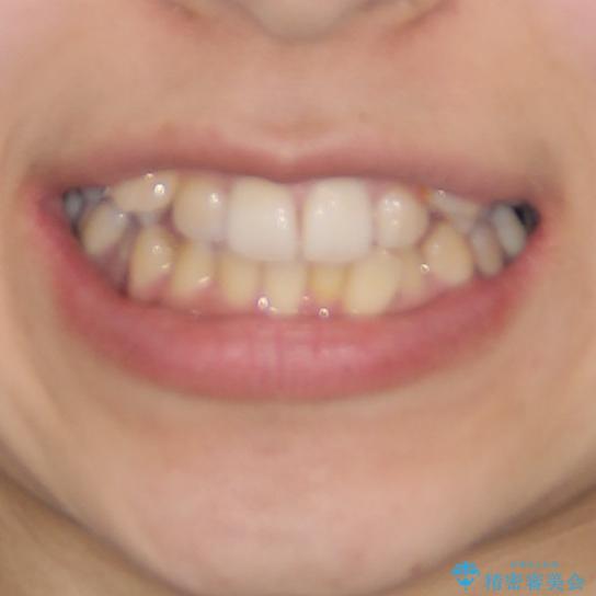 八重歯の抜歯矯正 補助装置を用いたインビザライン矯正の治療前(顔貌)