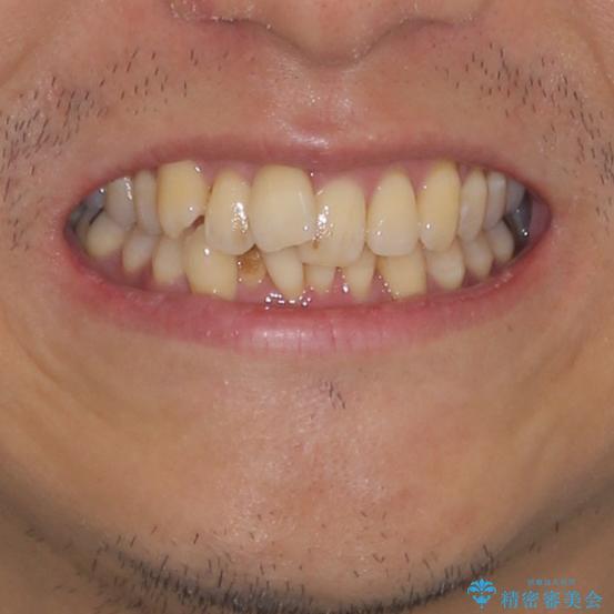 前歯のデコボコ ワイヤー装置での短期間治療の治療前(顔貌)
