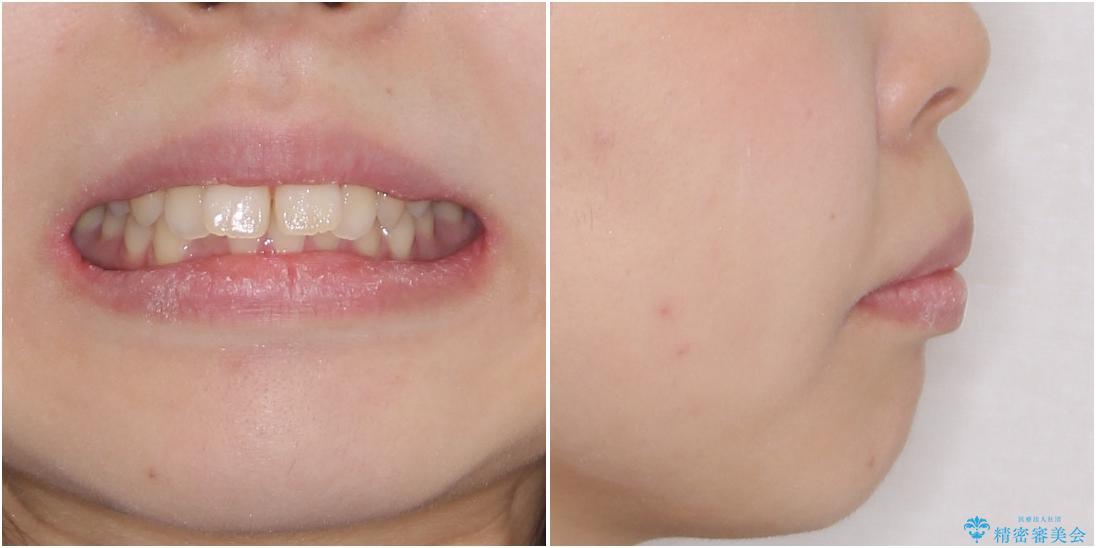 費用を抑えた抜歯矯正 口元の突出感の改善の治療前(顔貌)