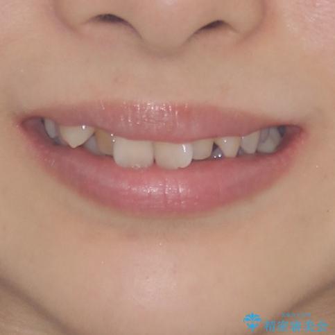 前歯2本が欠損 抜歯矯正でデコボコを治すの治療前(顔貌)